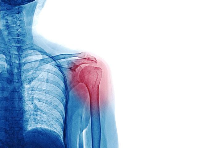 Workers Comp Shoulder Injury